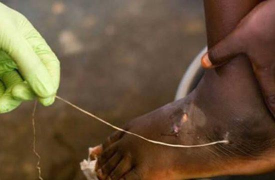 Guinea worm,Disease,Eradication